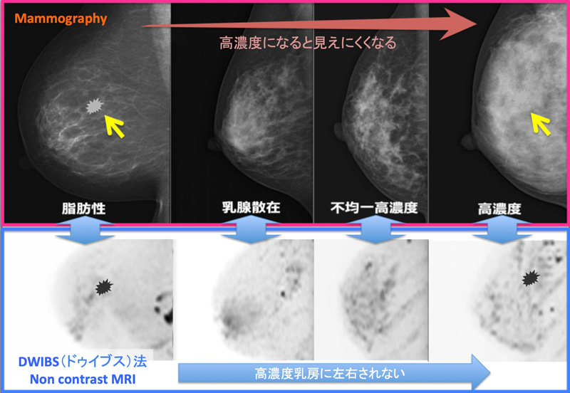 高濃度乳房 MMG vs DWIBS