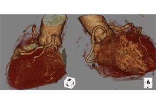 症例1.正常冠動脈例