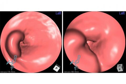 バーチャル大腸内視鏡(3D像)